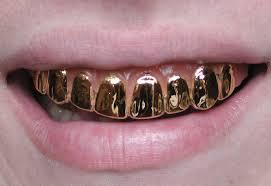 FC Златния зъб